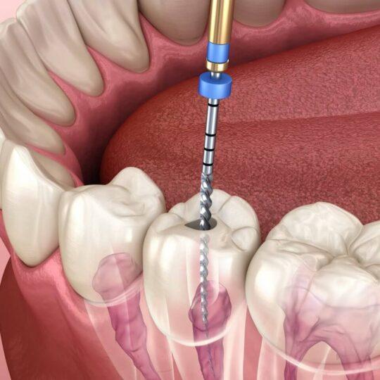 tratamente endodontice Cluj