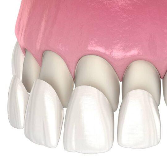 pret fatete dentare Cluj