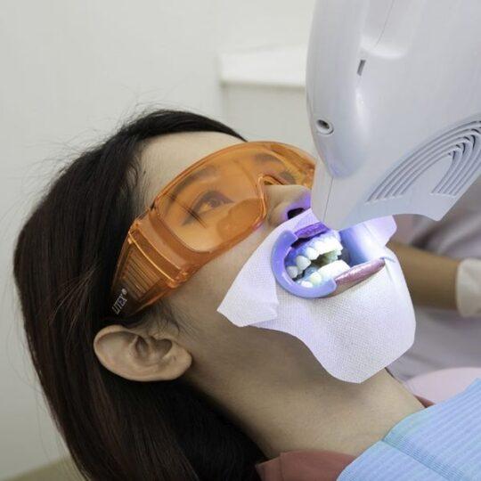 albire dentara profesionala cluj