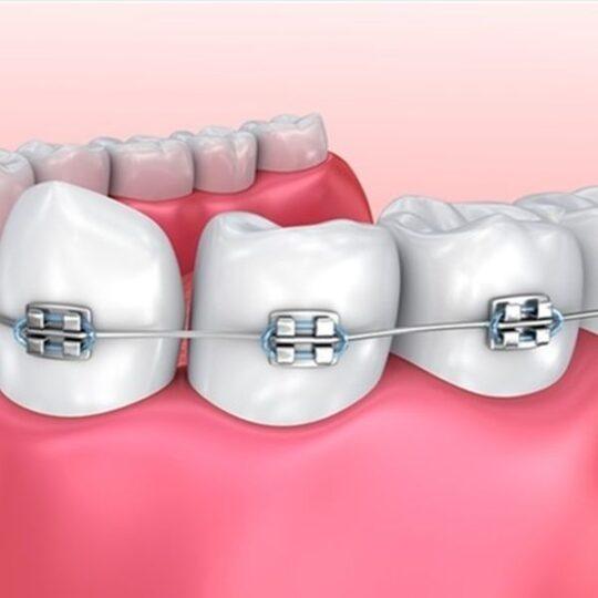 ortodontie Cluj - aparate dentare metalice