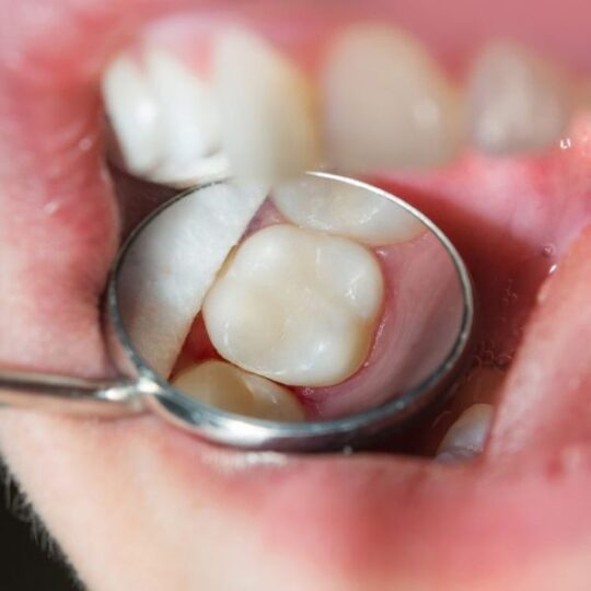 carii dentare Cluj