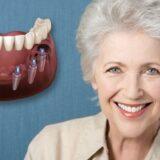 reabilitari dentare cu implanturi dentare totale Cluj