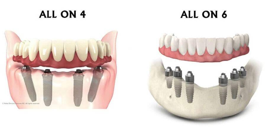 reabilitari dentare totale Cluj