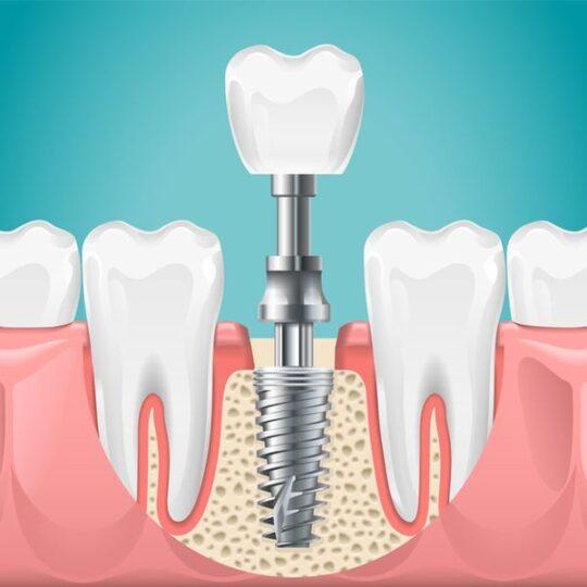 implanturi dentare Cluj