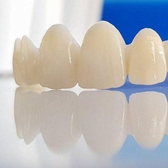coroane dentare Cluj
