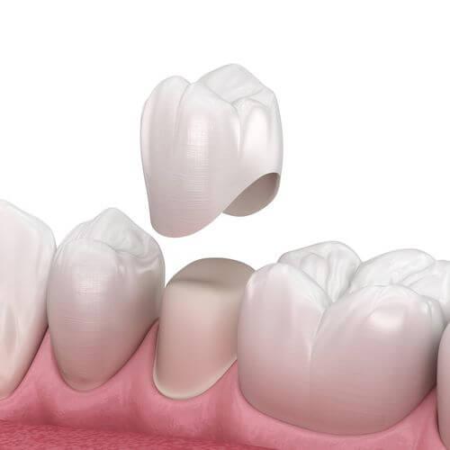 coroane dentare CAD/CAM Cluj